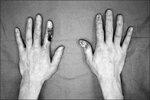 Hand_Necrosis.jpg
