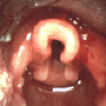 Direct Laryngoscopy